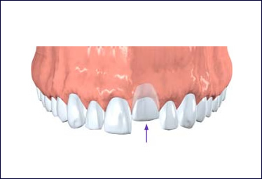 Endodontics RootCanal Beaverton OR VanGordon trauma1