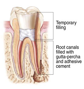 Van Gordon Endodontics - What Is A Root Canal? - Beaverton